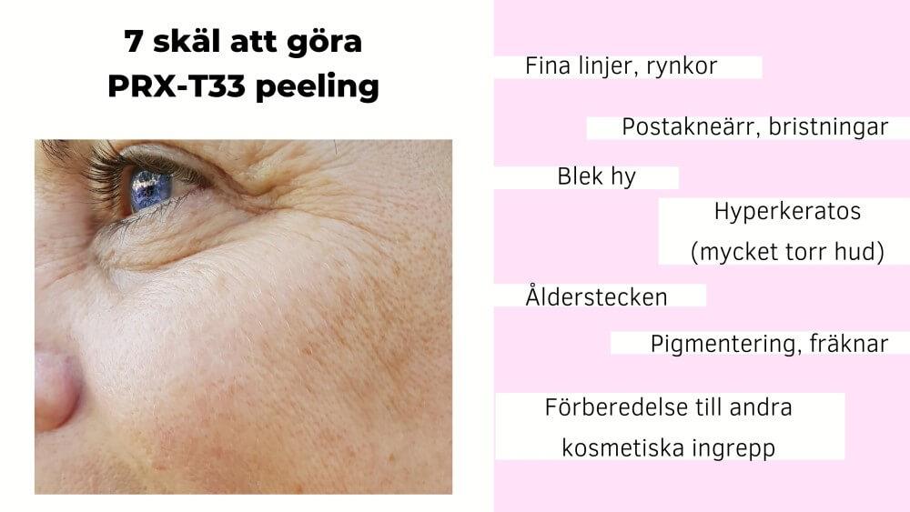 PRX T33 resultat mot rynkor